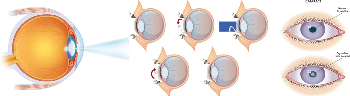 Cataracts Slider Image